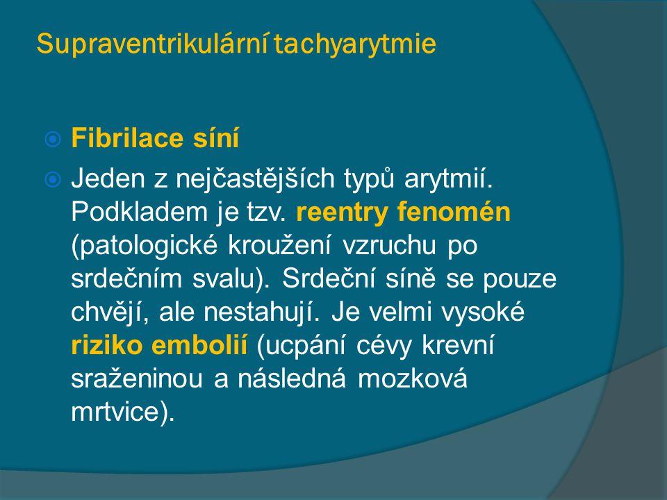 Supraventrikulární tachyarytmie  Fibrilace síní  Jeden z nejčastějších typů arytmií. Podkladem je tzv. reentry fenomén (patologické kroužení vzruchu