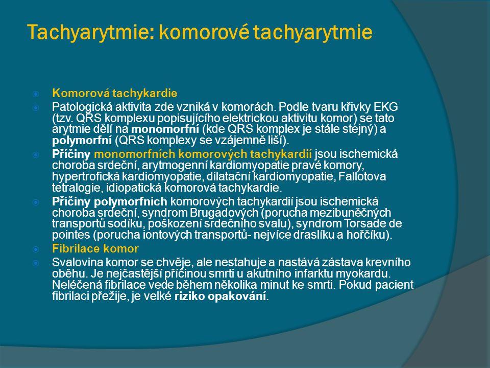 Tachyarytmie: komorové tachyarytmie  Komorová tachykardie  Patologická aktivita zde vzniká v komorách. Podle tvaru křivky EKG (tzv. QRS komplexu pop