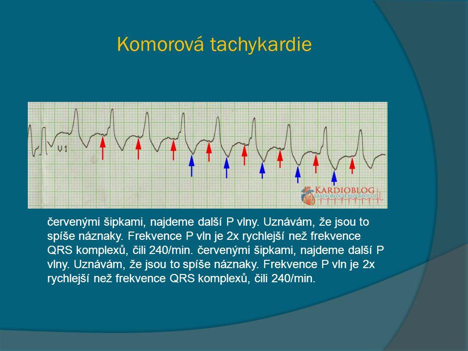 Komorová tachykardie červenými šipkami, najdeme další P vlny. Uznávám, že jsou to spíše náznaky. Frekvence P vln je 2x rychlejší než frekvence QRS kom