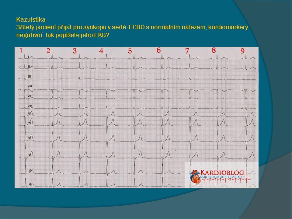 Kazuistika 38letý pacient přijat pro synkopu v sedě. ECHO s normálním nálezem, kardiomarkery negativní. Jak popíšete jeho EKG?
