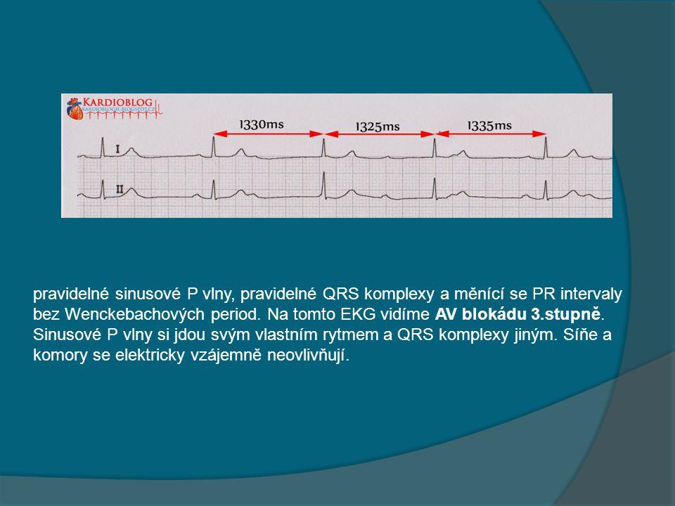 pravidelné sinusové P vlny, pravidelné QRS komplexy a měnící se PR intervaly bez Wenckebachových period. Na tomto EKG vidíme AV blokádu 3.stupně. Sinu