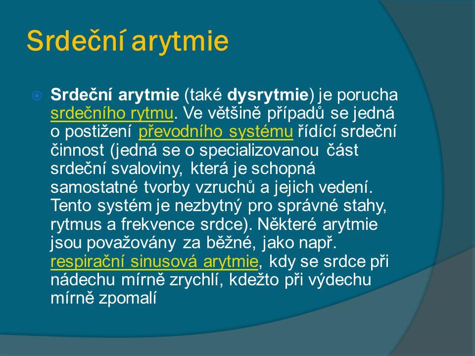 Srdeční arytmie  Srdeční arytmie (také dysrytmie) je porucha srdečního rytmu. Ve většině případů se jedná o postižení převodního systému řídící srdeč