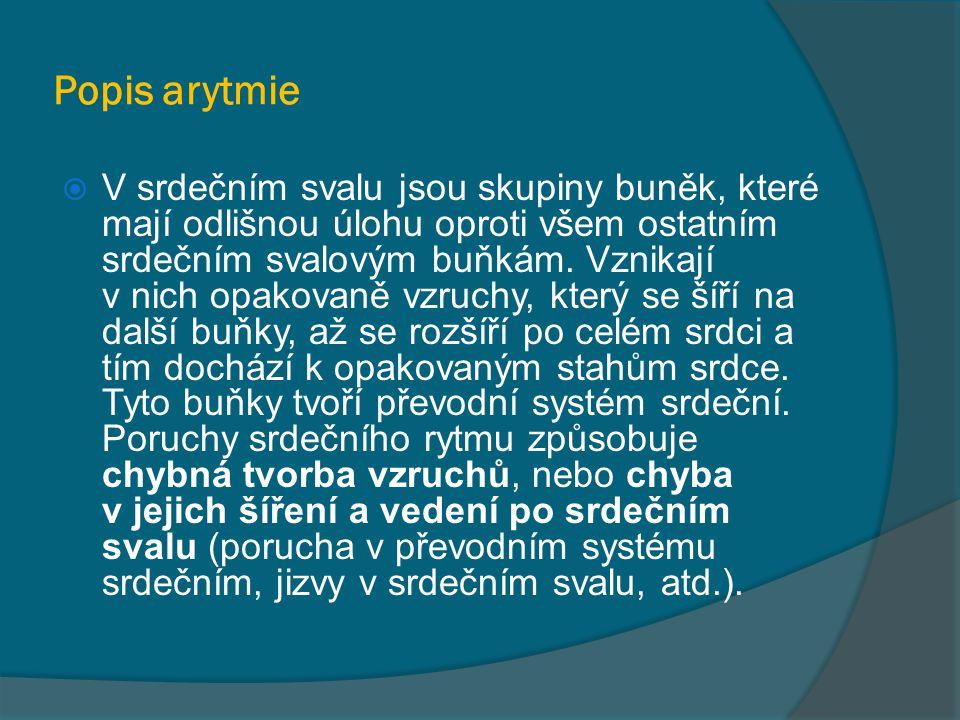 Popis arytmie  V srdečním svalu jsou skupiny buněk, které mají odlišnou úlohu oproti všem ostatním srdečním svalovým buňkám. Vznikají v nich opakovan