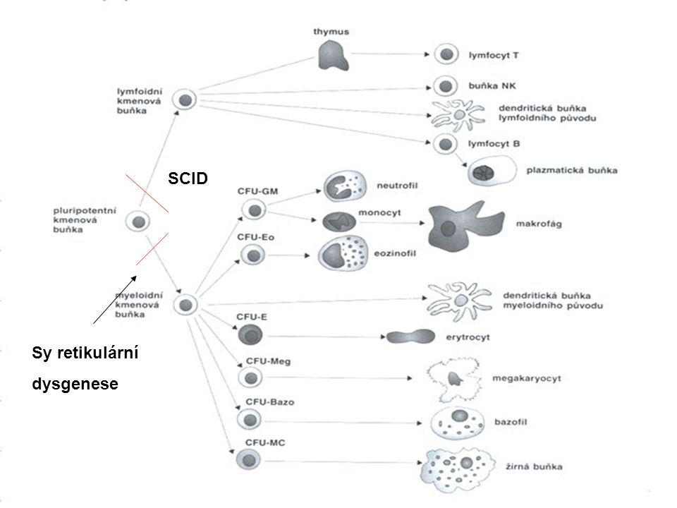 SCID Sy retikulární dysgenese