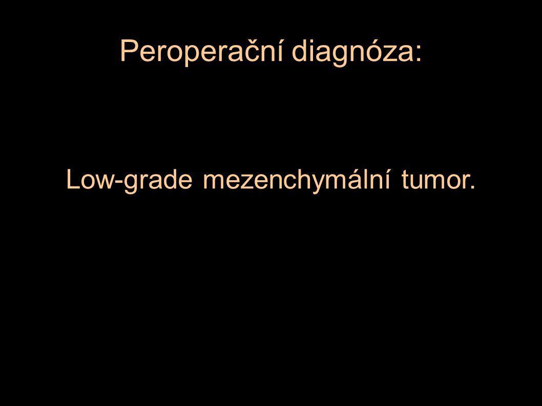Peroperační diagnóza: Low-grade mezenchymální tumor.