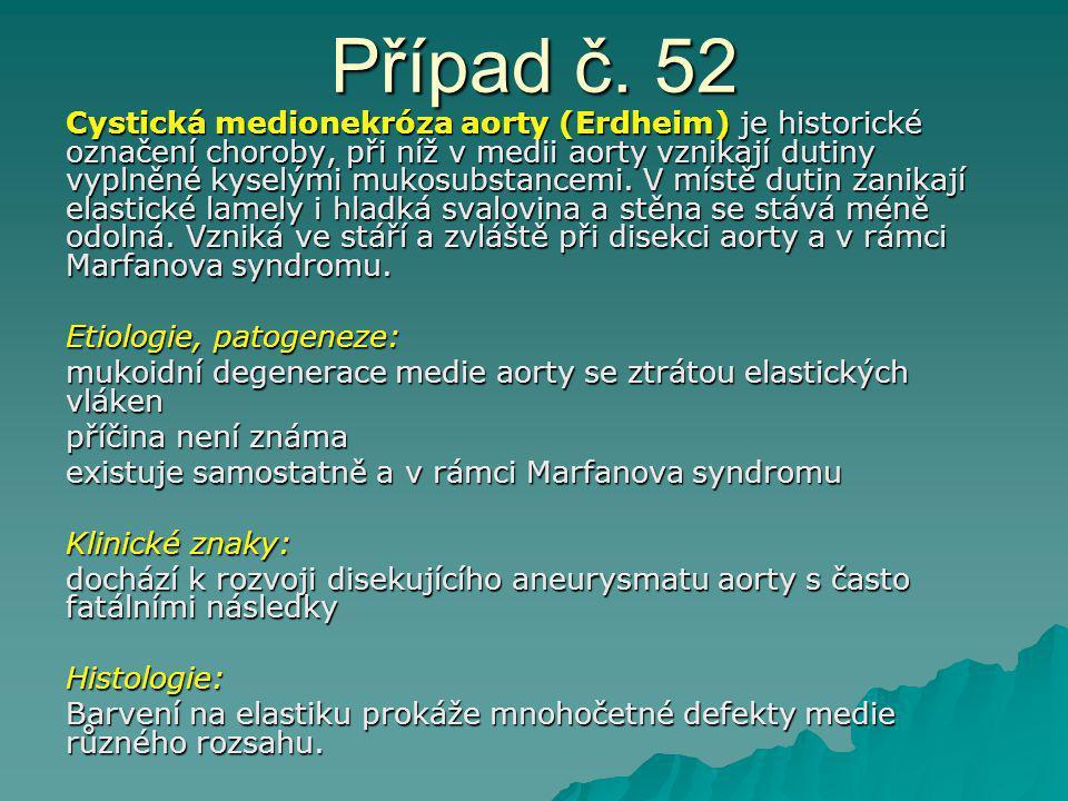 Případ č. 52 Cystická medionekróza aorty (Erdheim) je historické označení choroby, při níž v medii aorty vznikají dutiny vyplněné kyselými mukosubstan
