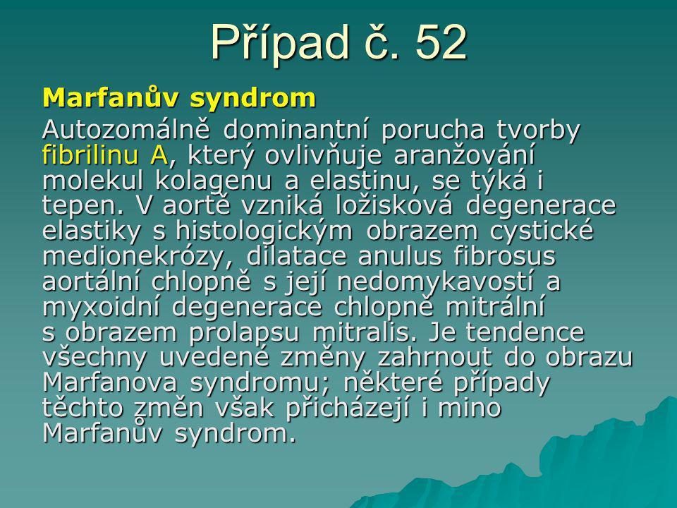 Případ č. 52 Marfanův syndrom Autozomálně dominantní porucha tvorby fibrilinu A, který ovlivňuje aranžování molekul kolagenu a elastinu, se týká i tep