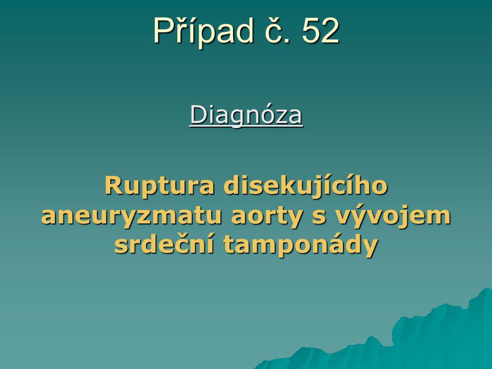 Případ č. 52 Diagnóza Ruptura disekujícího aneuryzmatu aorty s vývojem srdeční tamponády