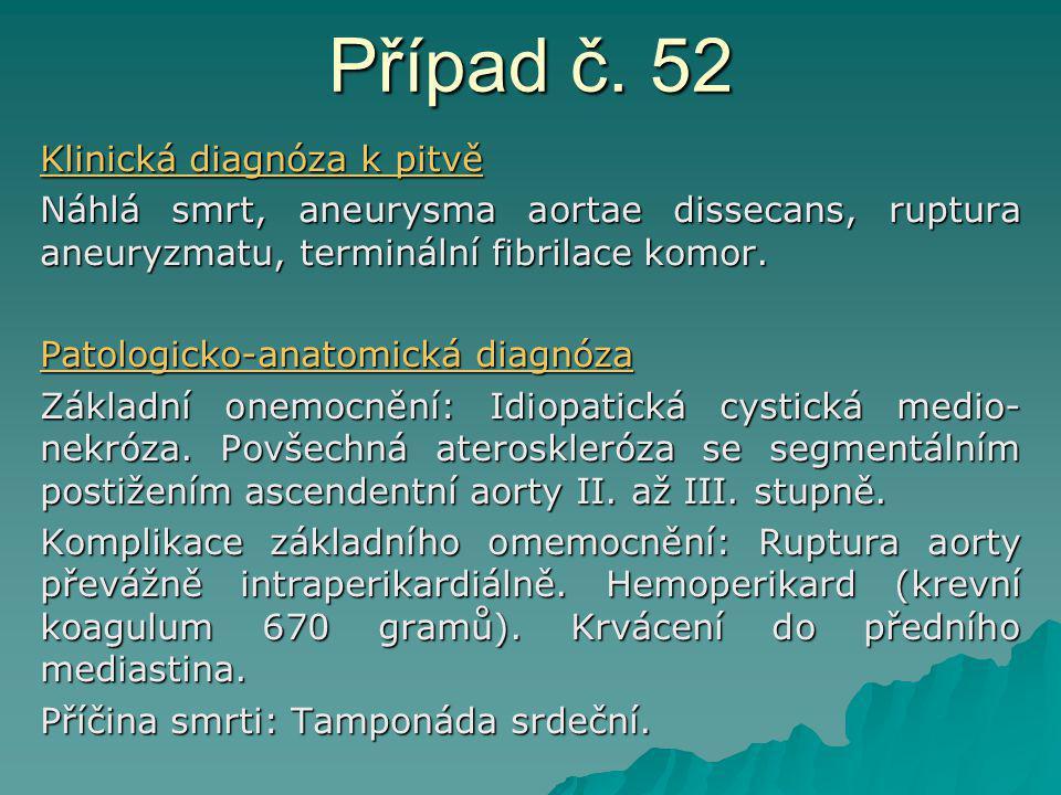 Případ č. 52 Klinická diagnóza k pitvě Náhlá smrt, aneurysma aortae dissecans, ruptura aneuryzmatu, terminální fibrilace komor. Patologicko-anatomická