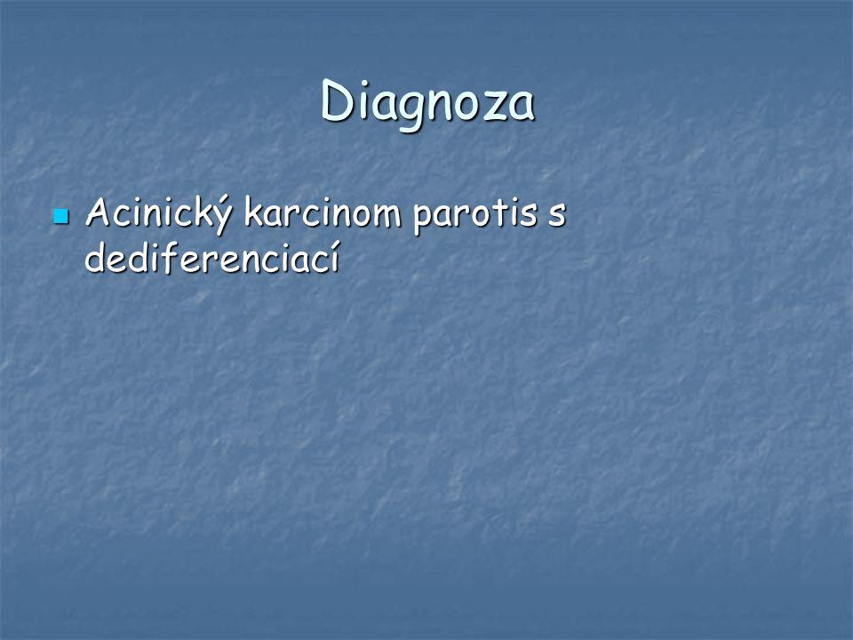 Diagnoza Acinický karcinom parotis s dediferenciací Acinický karcinom parotis s dediferenciací
