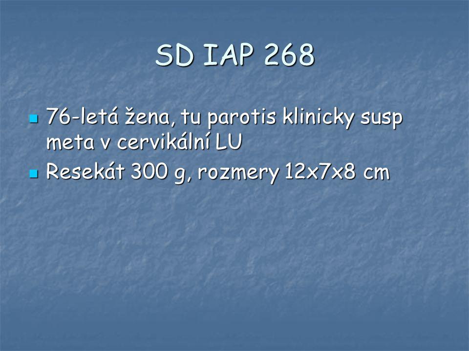 SD IAP 268 76-letá žena, tu parotis klinicky susp meta v cervikální LU 76-letá žena, tu parotis klinicky susp meta v cervikální LU Resekát 300 g, rozm