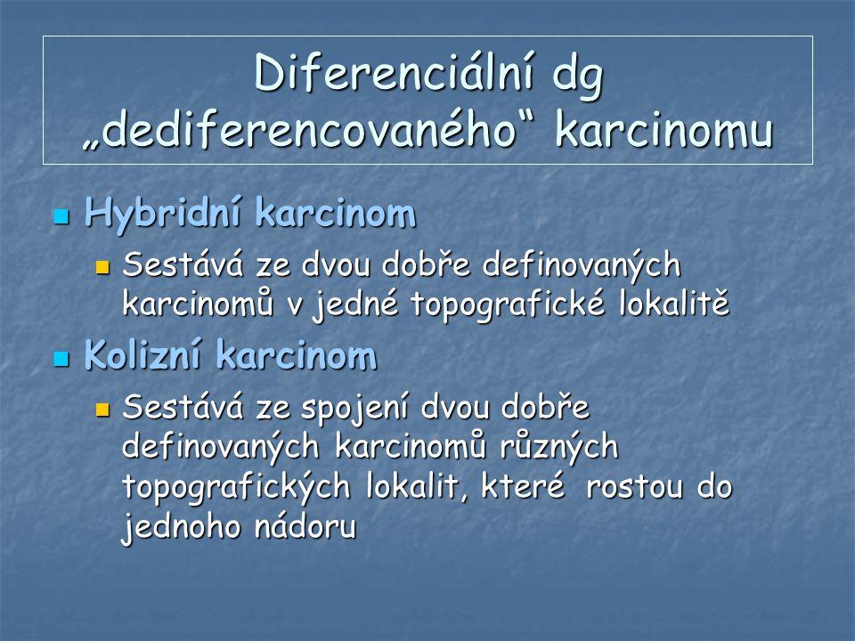 """Diferenciální dg """"dediferencovaného"""" karcinomu Hybridní karcinom Hybridní karcinom Sestává ze dvou dobře definovaných karcinomů v jedné topografické l"""