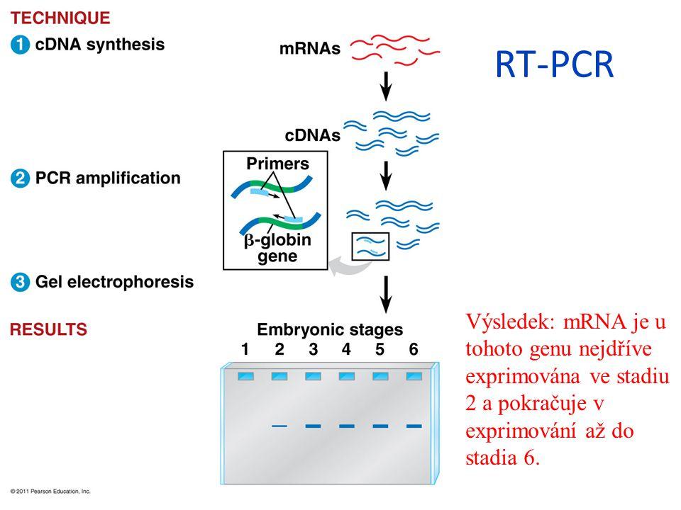 RT-PCR Výsledek: mRNA je u tohoto genu nejdříve exprimována ve stadiu 2 a pokračuje v exprimování až do stadia 6.