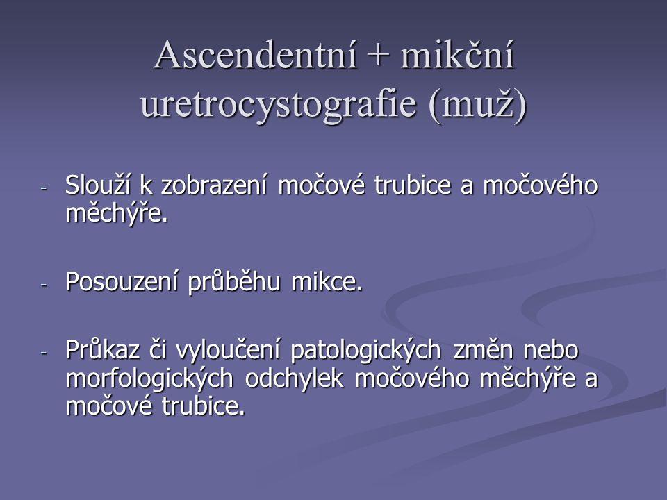 Ascendentní + mikční uretrocystografie (muž) - Slouží k zobrazení močové trubice a močového měchýře.