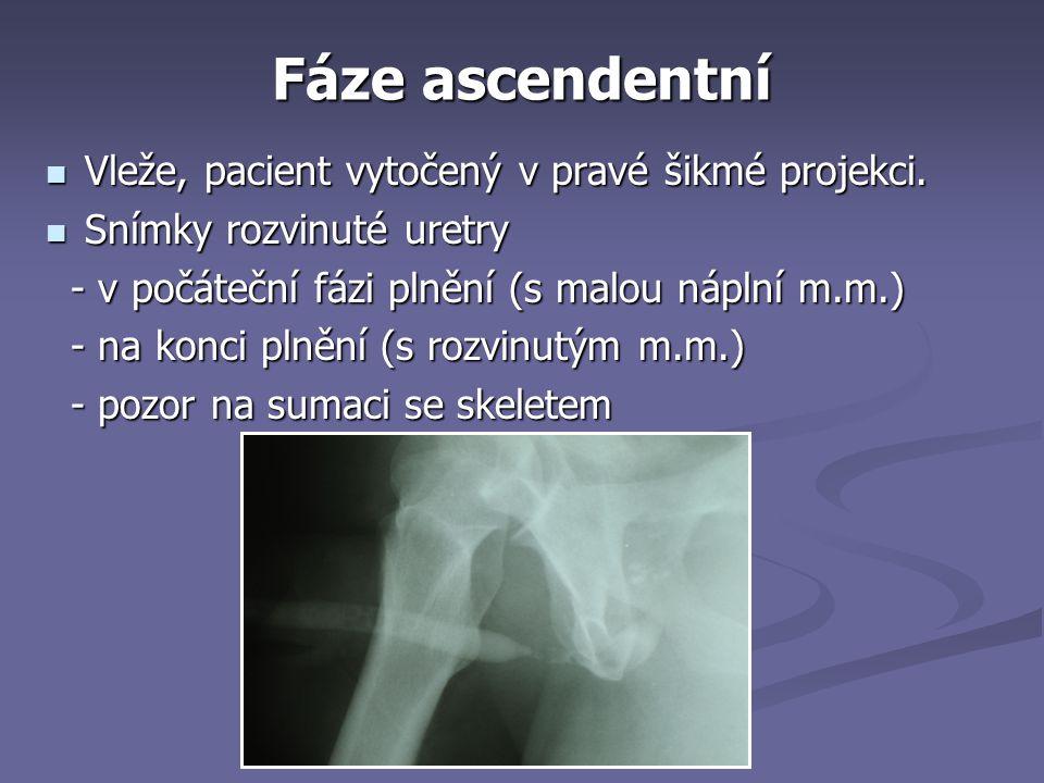 Fáze ascendentní Vleže, pacient vytočený v pravé šikmé projekci.