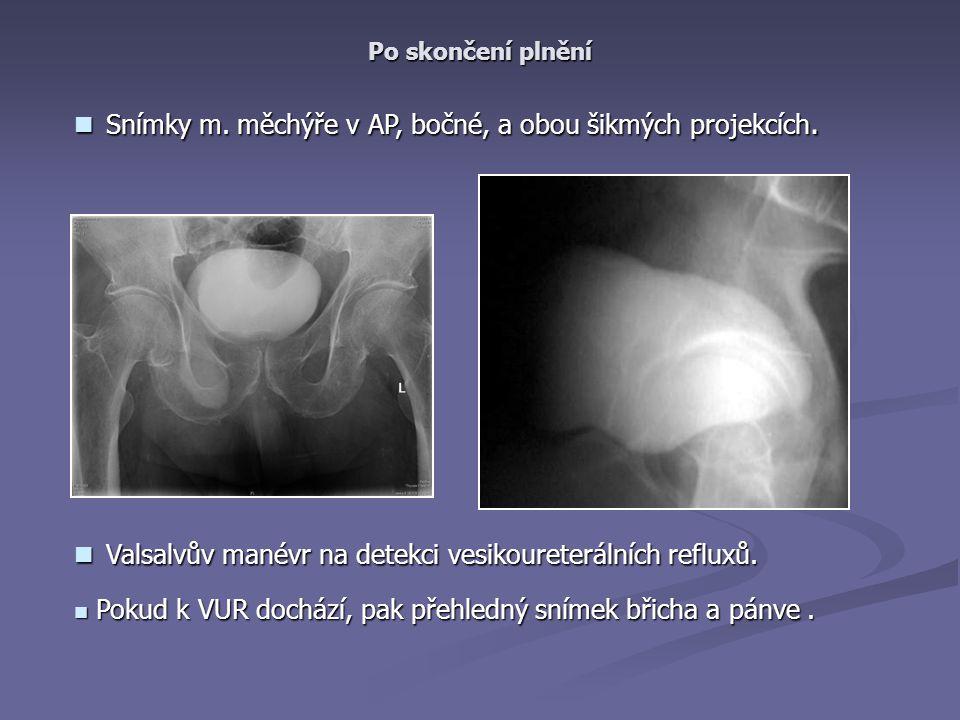 Snímky m.měchýře v AP, bočné, a obou šikmých projekcích.