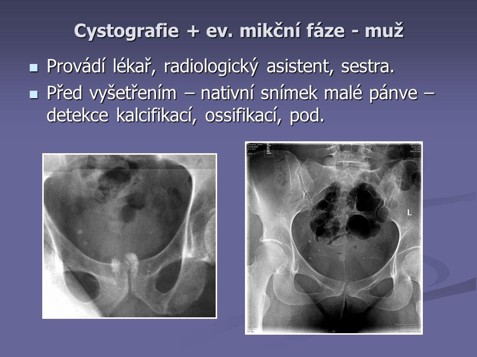 Cystografie + ev.mikční fáze - muž Provádí lékař, radiologický asistent, sestra.