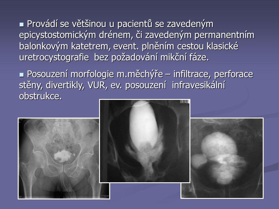 Provádí se většinou u pacientů se zavedeným epicystostomickým drénem, či zavedeným permanentním balonkovým katetrem, event.
