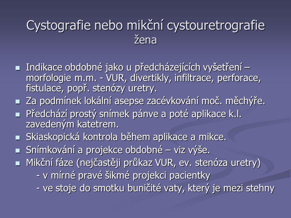 Cystografie nebo mikční cystouretrografie žena Indikace obdobné jako u předcházejících vyšetření – morfologie m.m.