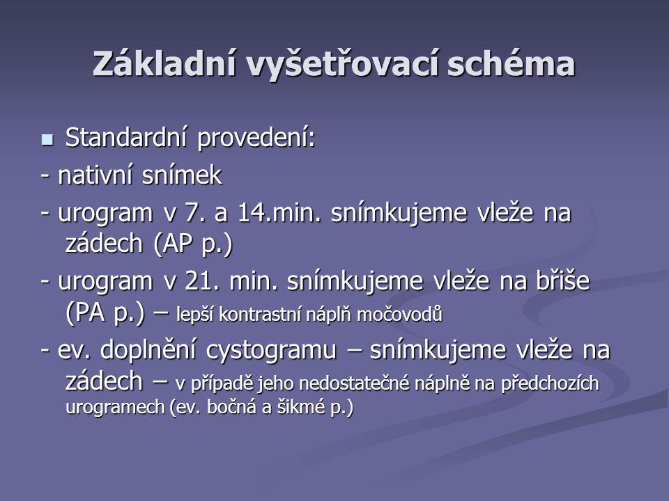 Základní vyšetřovací schéma Standardní provedení: Standardní provedení: - nativní snímek - urogram v 7.