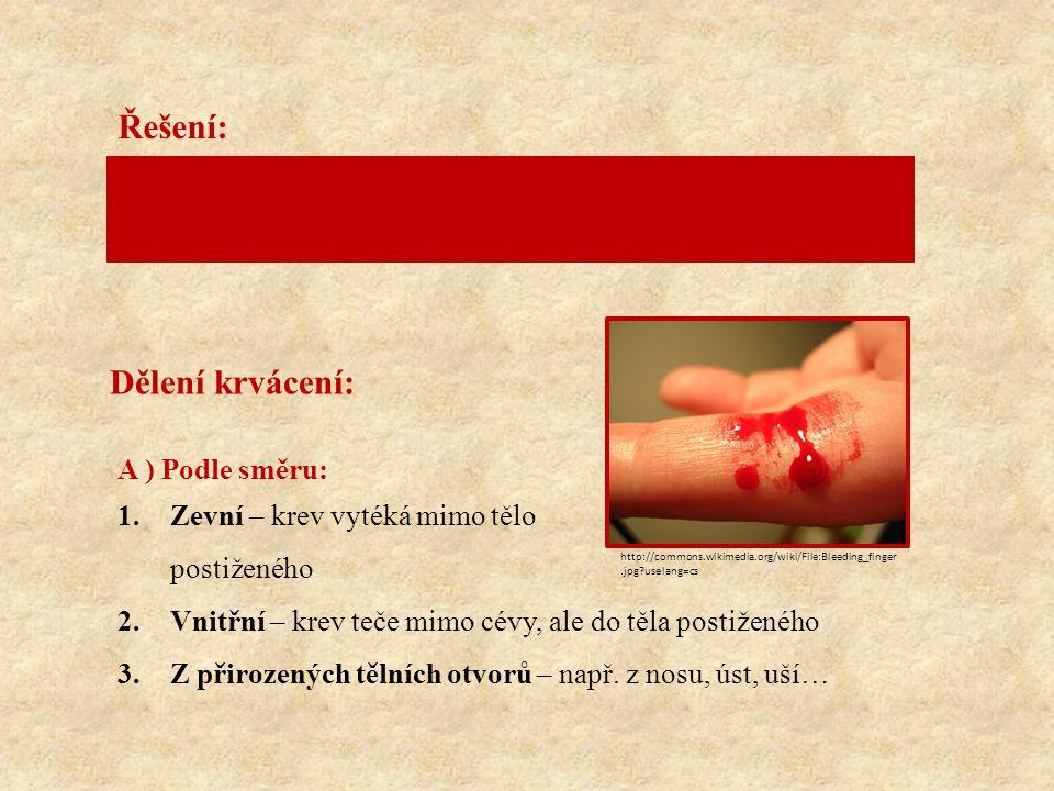 Dělení krvácení: A ) Podle směru: 1.Zevní – krev vytéká mimo tělo postiženého 2.Vnitřní – krev teče mimo cévy, ale do těla postiženého 3.Z přirozených