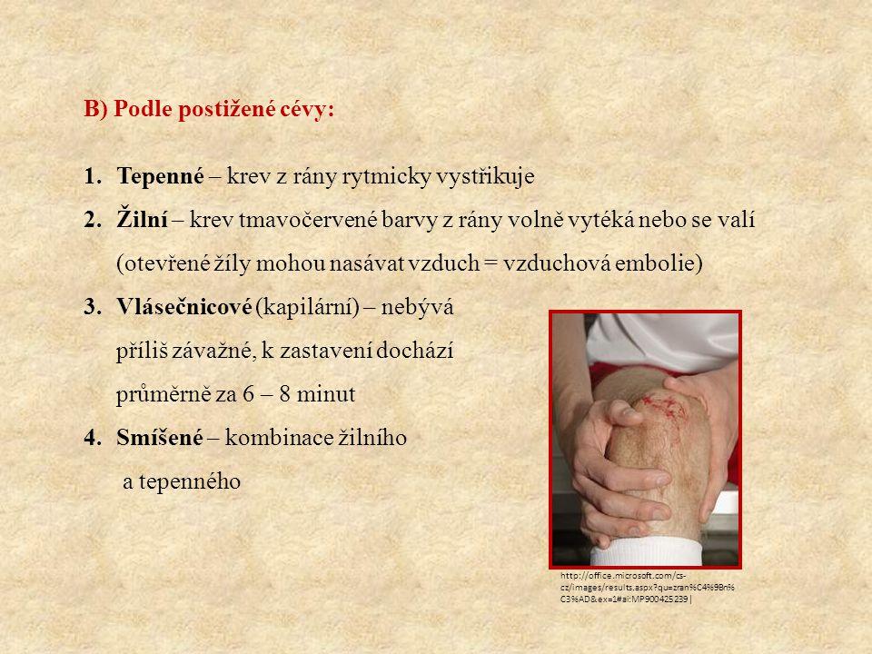 B) Podle postižené cévy: 1.Tepenné – krev z rány rytmicky vystřikuje 2.Žilní – krev tmavočervené barvy z rány volně vytéká nebo se valí (otevřené žíly