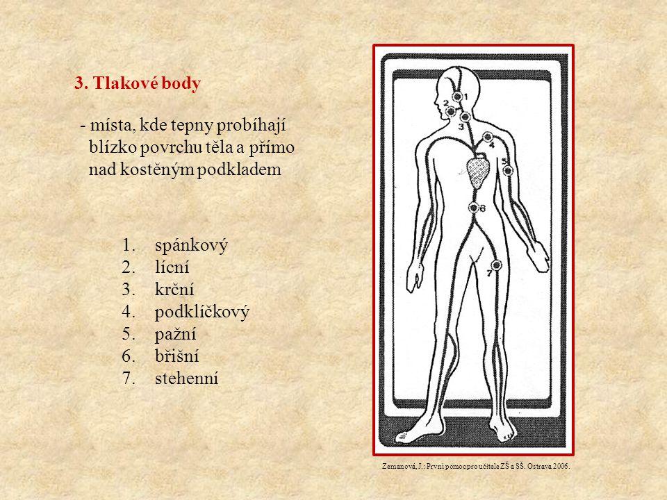 3. Tlakové body - místa, kde tepny probíhají blízko povrchu těla a přímo nad kostěným podkladem 1.spánkový 2.lícní 3.krční 4.podklíčkový 5.pažní 6.bři