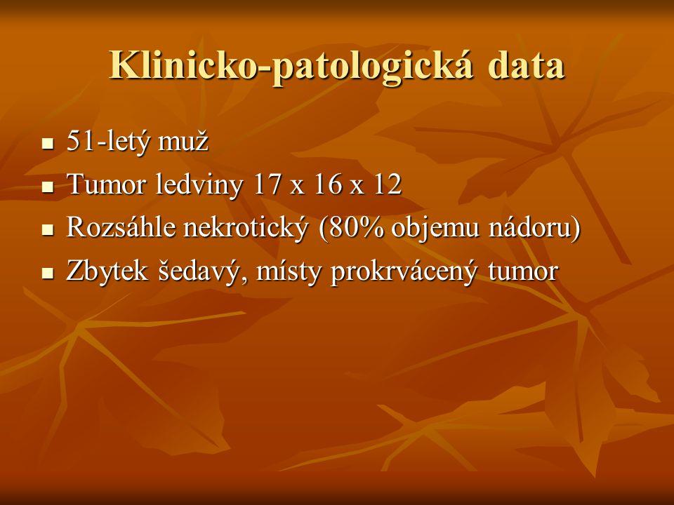 Klinicko-patologická data 51-letý muž 51-letý muž Tumor ledviny 17 x 16 x 12 Tumor ledviny 17 x 16 x 12 Rozsáhle nekrotický (80% objemu nádoru) Rozsáh