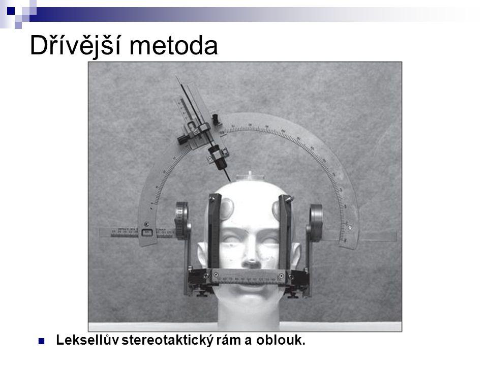 Dřívější metoda Leksellův stereotaktický rám a oblouk.