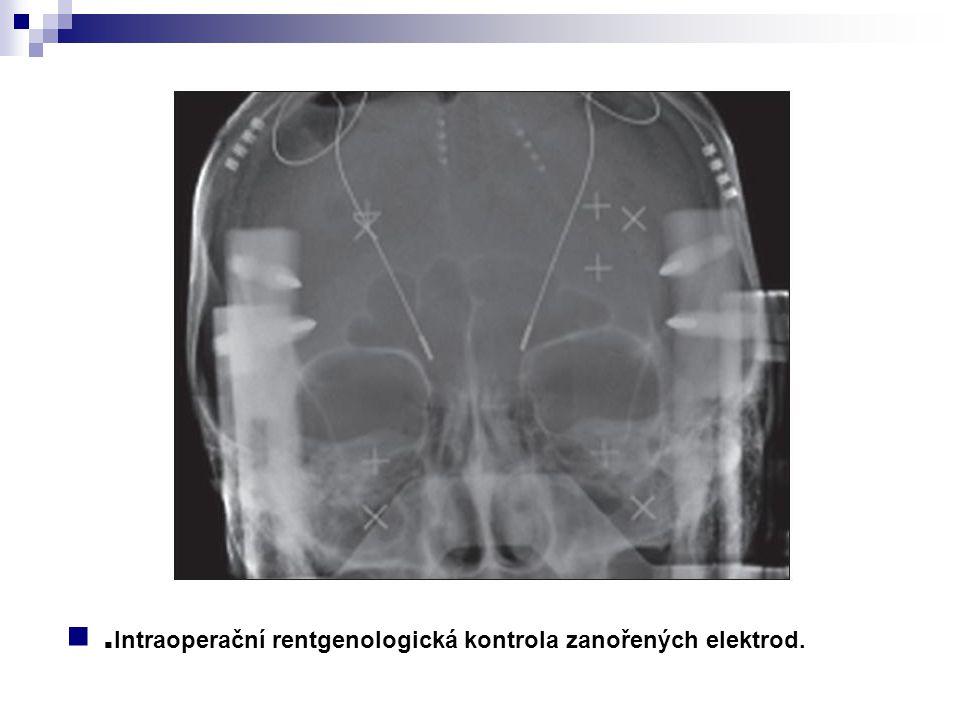 . Intraoperační rentgenologická kontrola zanořených elektrod.