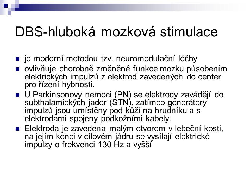 DBS-hluboká mozková stimulace je moderní metodou tzv. neuromodulační léčby ovlivňuje chorobně změněné funkce mozku působením elektrických impulzů z el