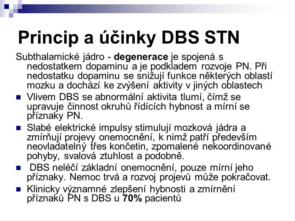 Princip a účinky DBS STN Subthalamické jádro - degenerace je spojená s nedostatkem dopaminu a je podkladem rozvoje PN. Při nedostatku dopaminu se sniž