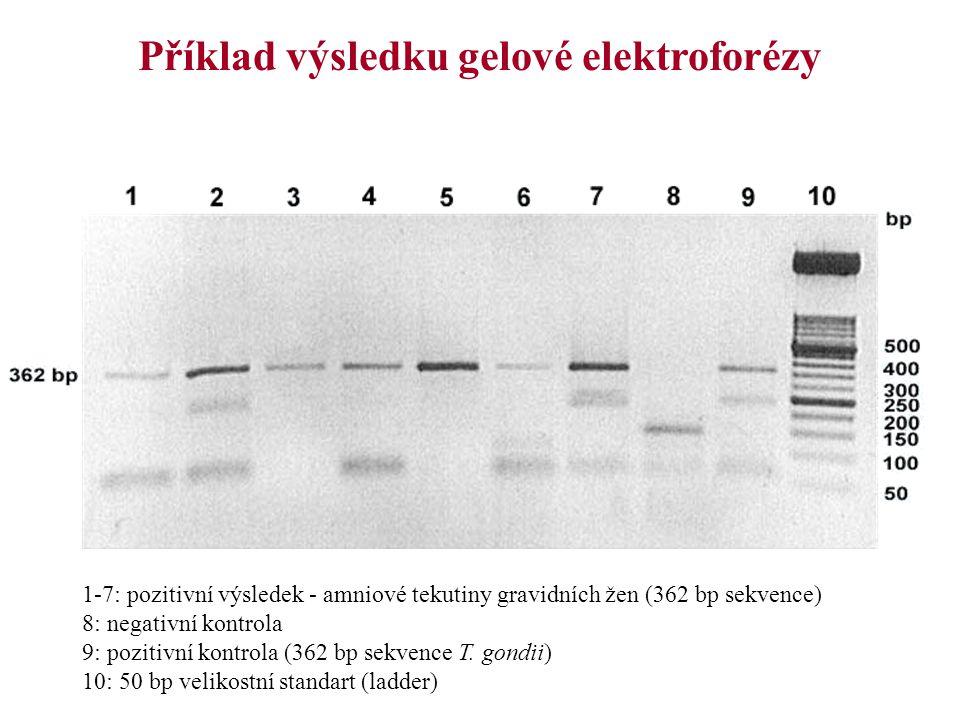 Příklad výsledku gelové elektroforézy 1-7: pozitivní výsledek - amniové tekutiny gravidních žen (362 bp sekvence) 8: negativní kontrola 9: pozitivní k