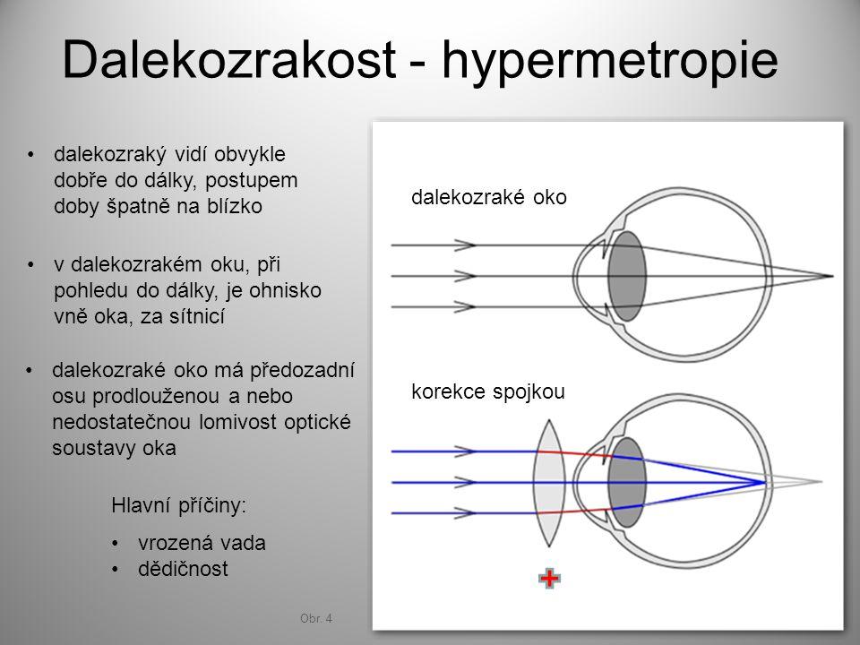 Dalekozrakost - hypermetropie dalekozraké oko korekce spojkou dalekozraký vidí obvykle dobře do dálky, postupem doby špatně na blízko v dalekozrakém o