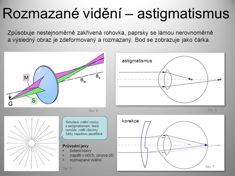 Rozmazané vidění – astigmatismus Průvodní jevy bolení hlavy napětí v očích, únava očí rozmazané vidění Způsobuje nestejnoměrně zakřivená rohovka, papr