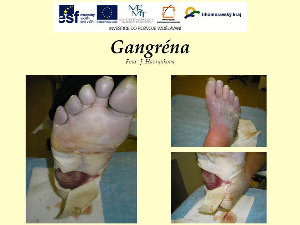 Gangréna Foto : J. Havránková