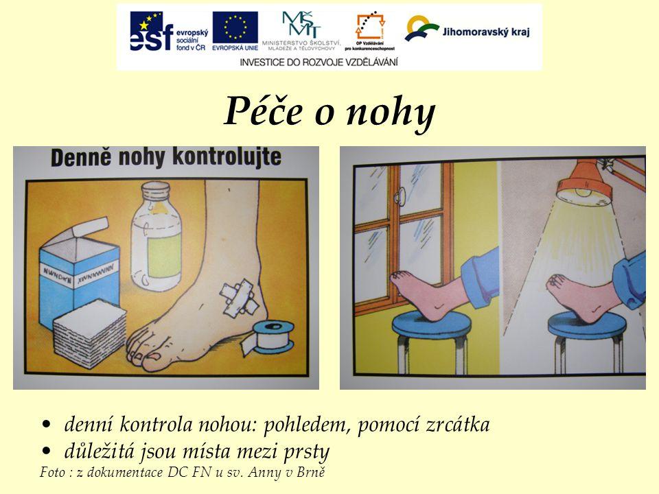 Péče o nohy denní kontrola nohou: pohledem, pomocí zrcátka důležitá jsou místa mezi prsty Foto : z dokumentace DC FN u sv. Anny v Brně