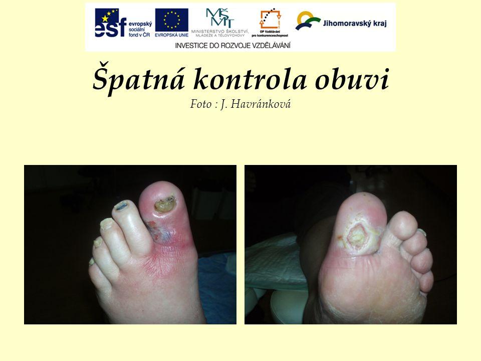 Špatná kontrola obuvi Foto : J. Havránková