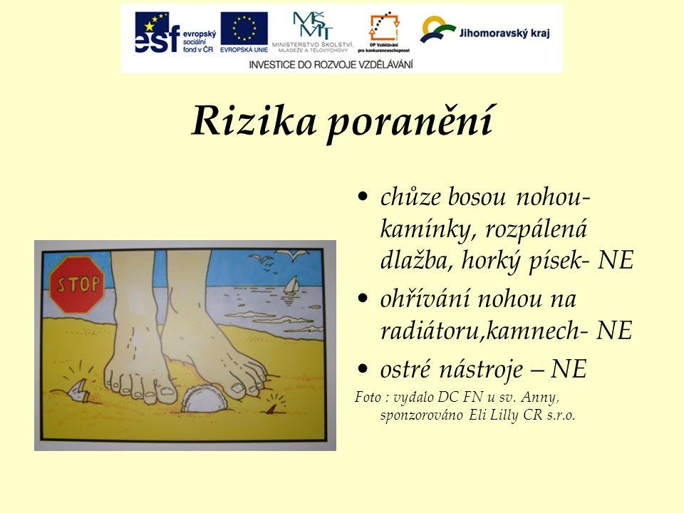 Rizika poranění chůze bosou nohou- kamínky, rozpálená dlažba, horký písek- NE ohřívání nohou na radiátoru,kamnech- NE ostré nástroje – NE Foto : vydal