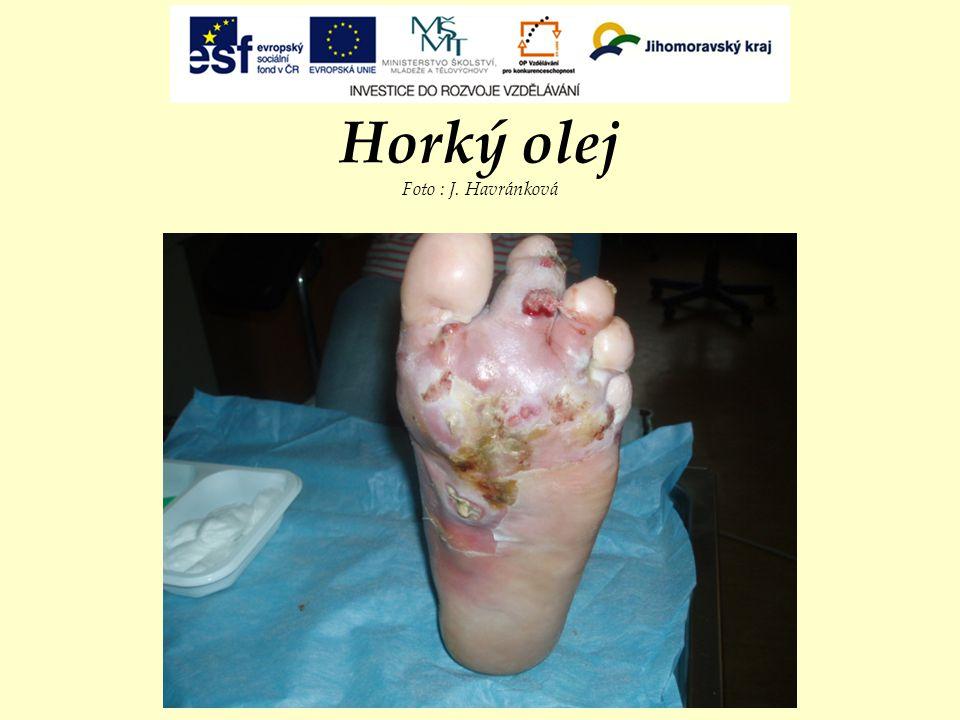 Horký olej Foto : J. Havránková