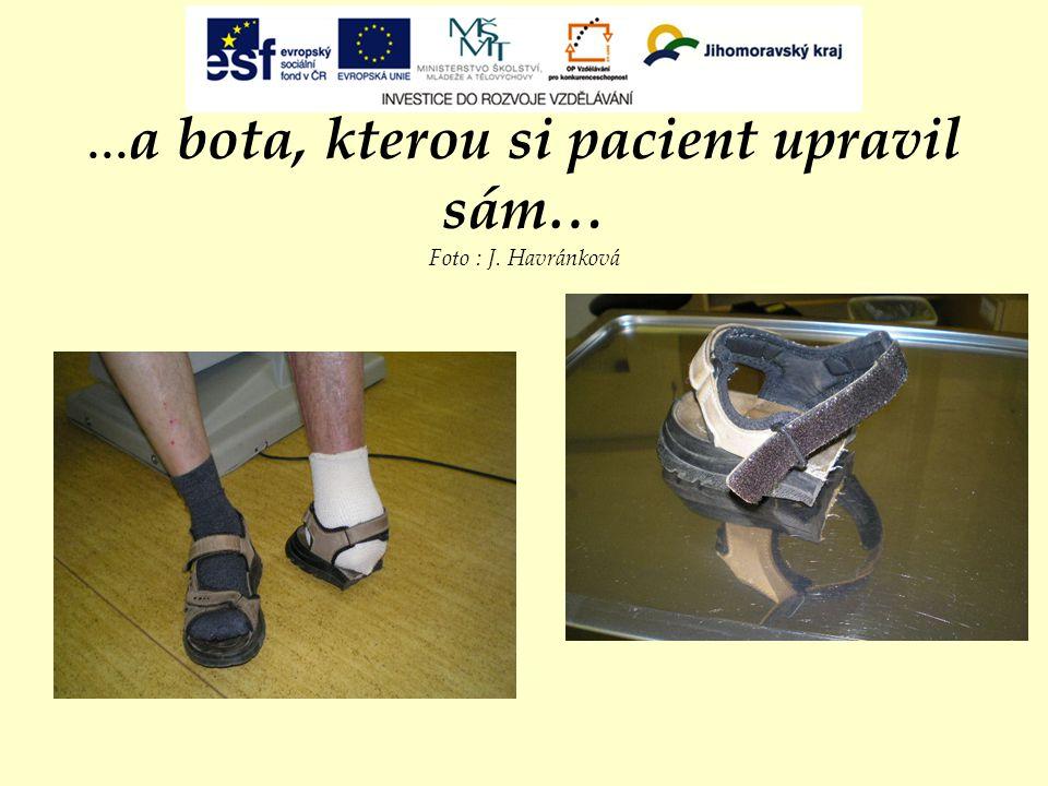 ...a bota, kterou si pacient upravil sám… Foto : J. Havránková