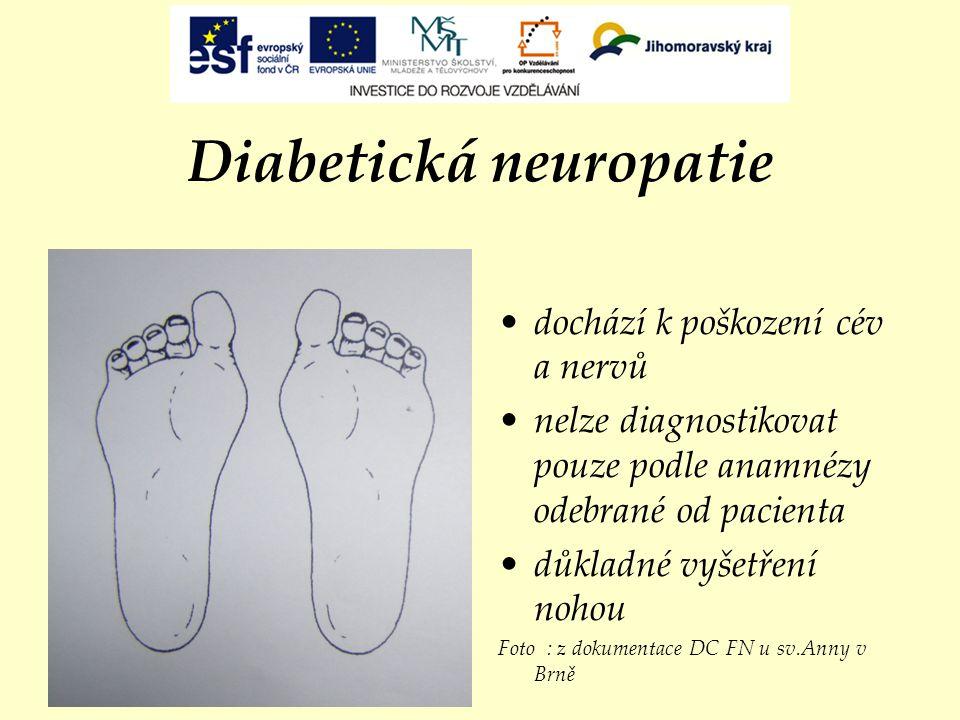 Diabetická neuropatie dochází k poškození cév a nervů nelze diagnostikovat pouze podle anamnézy odebrané od pacienta důkladné vyšetření nohou Foto : z