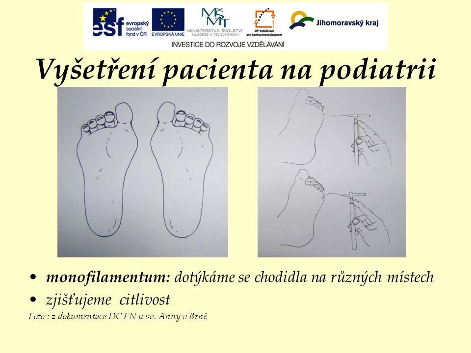 Vyšetření pacienta na podiatrii monofilamentum: dotýkáme se chodidla na různých místech zjišťujeme citlivost Foto : z dokumentace DC FN u sv. Anny v B