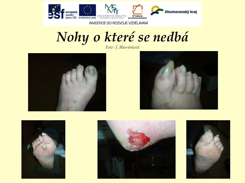 Nohy o které se nedbá Foto : J. Havránková