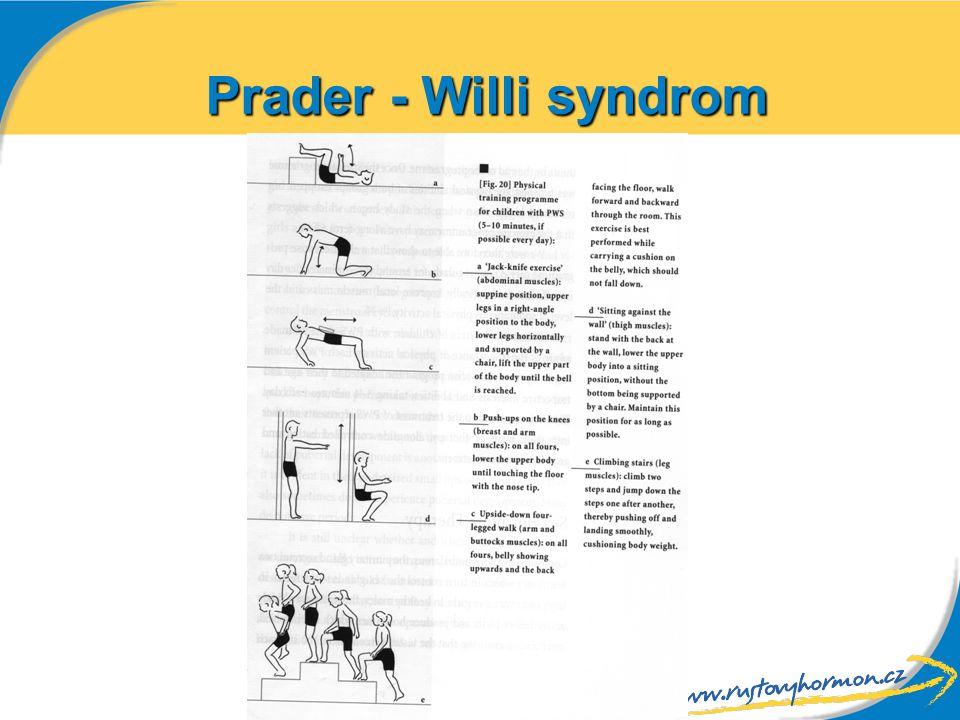 Prader - Willi syndrom