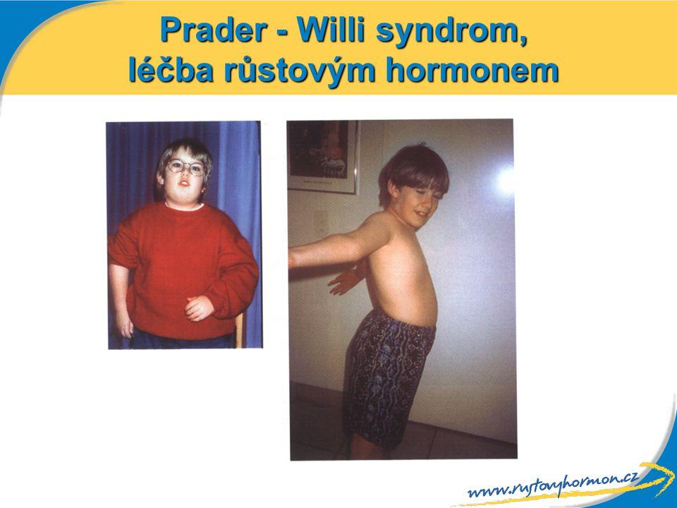 Prader - Willi syndrom, léčba růstovým hormonem