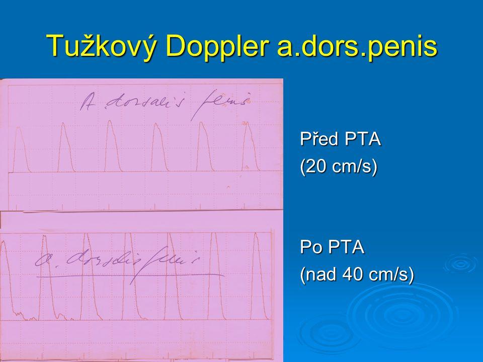 Tužkový Doppler a.dors.penis Před PTA (20 cm/s) Po PTA (nad 40 cm/s)