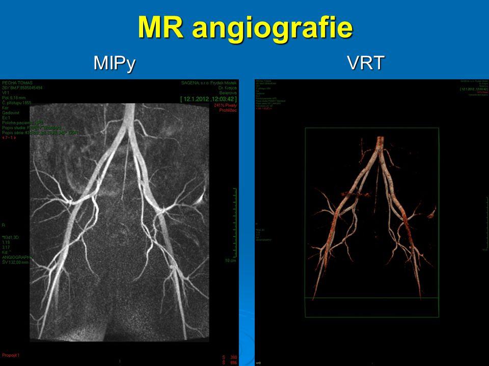MR angiografie MIPy VRT MIPy VRT