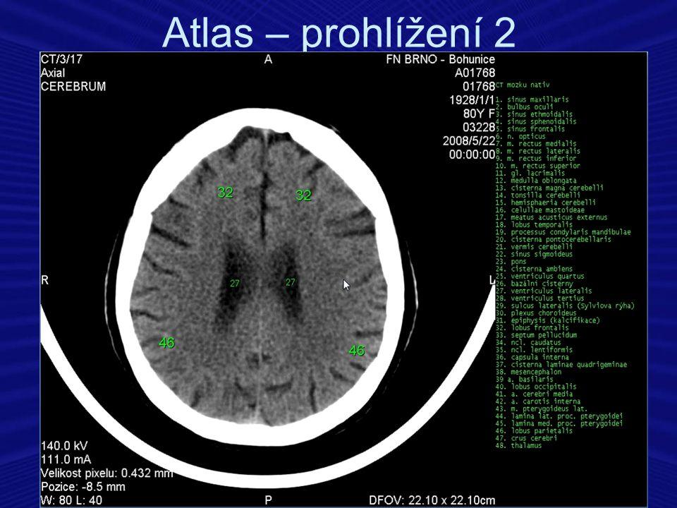 Atlas – prohlížení 2