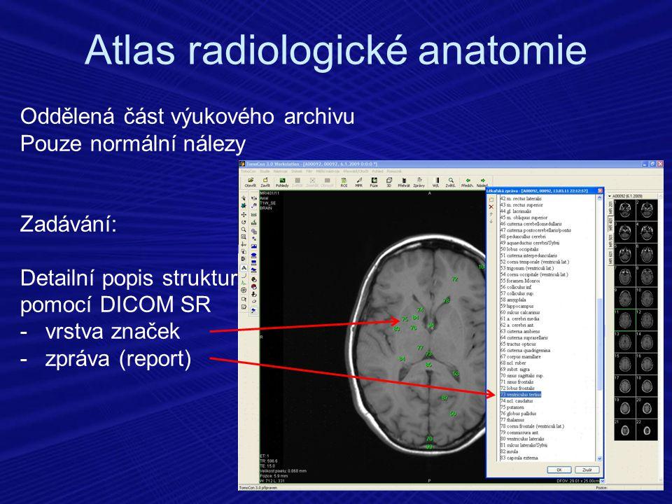 Oddělená část výukového archivu Pouze normální nálezy Zadávání: Detailní popis struktur pomocí DICOM SR -vrstva značek -zpráva (report) Atlas radiolog